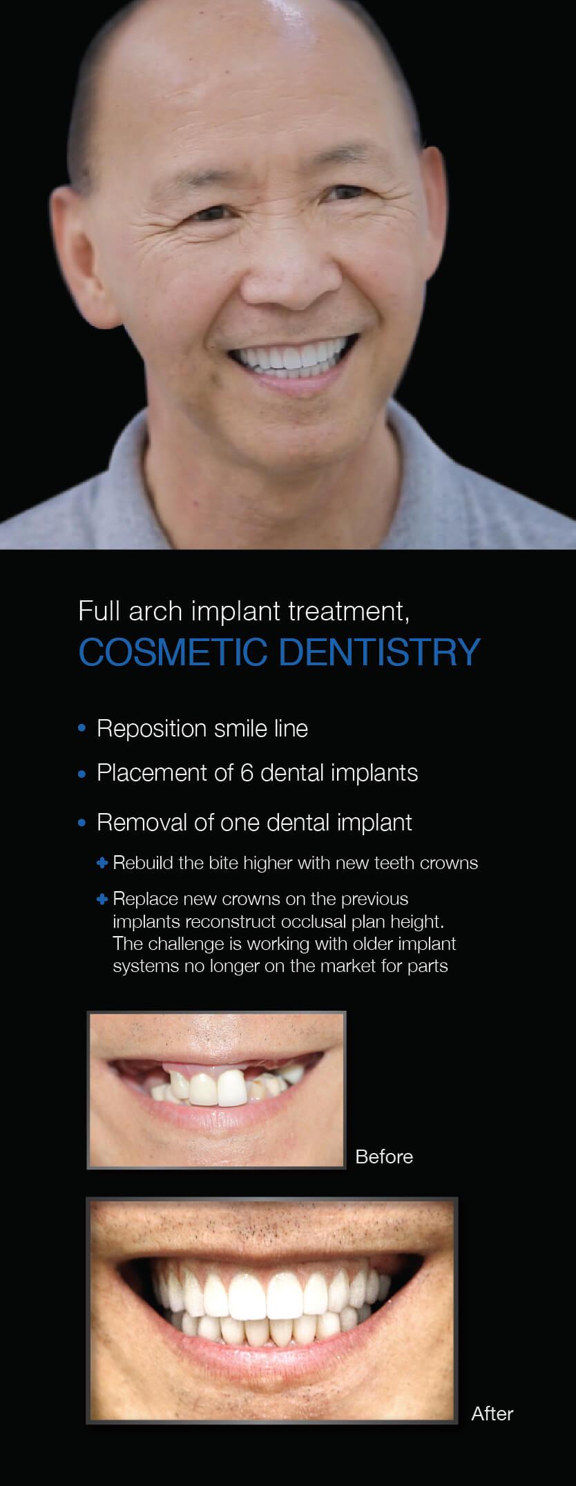implant-treatment-at-westcoast-international-dental-clinic