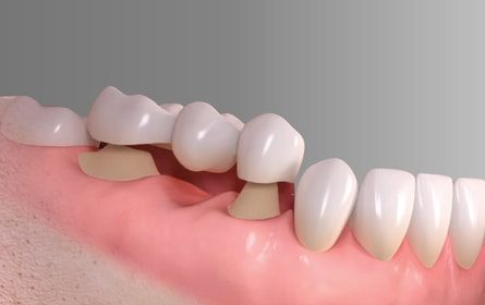 The advantages of using an implant compared to a dental bridge