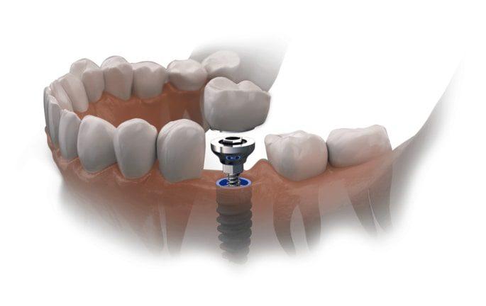 Westcoast Dental: Implant Model